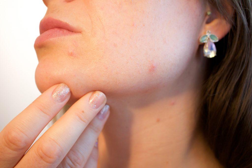 woman face acne